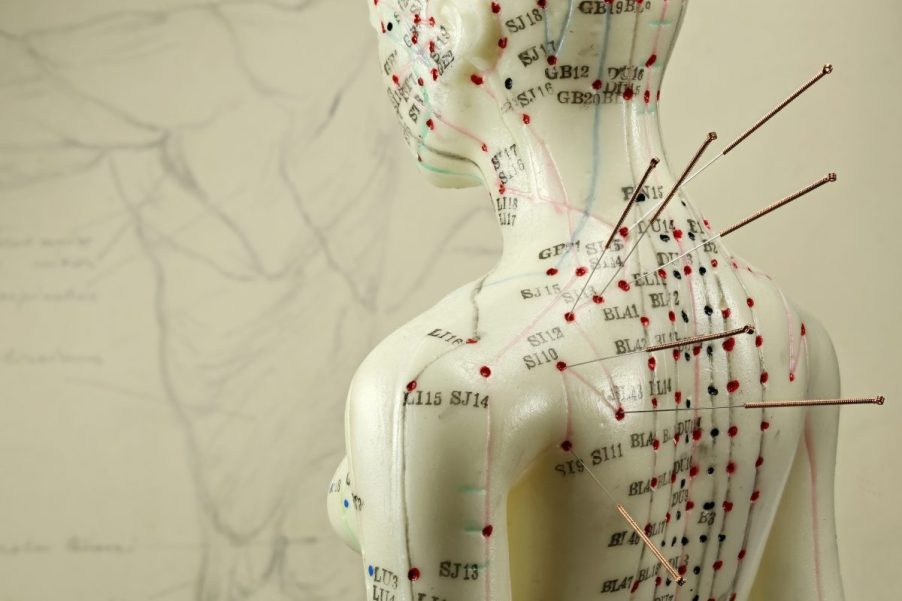 A human medical figurine with acupuncture needles inserted into marked Qi meridien acupoints
